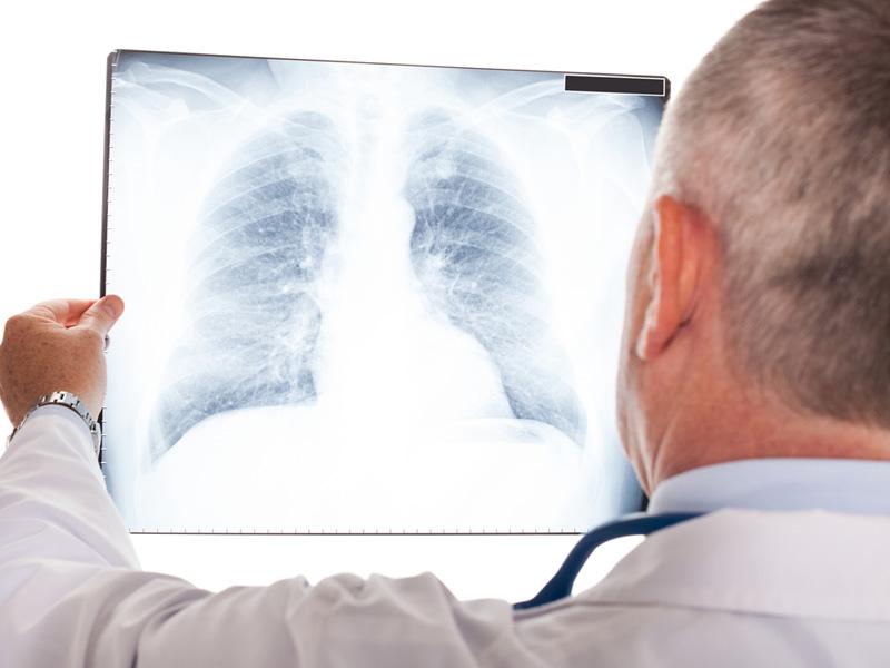Asbestosis - What is Asbestosis?   Asbestos Disease, LLC